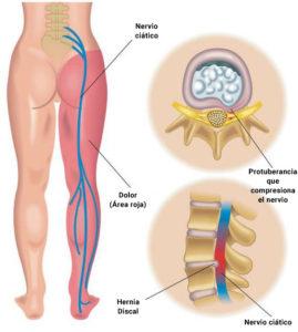 ciatica en el embarazo licencia