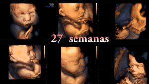 semana 27 embarazo gemelar peso