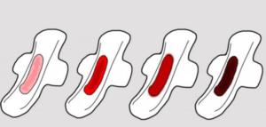sangrado embarazo ectopico
