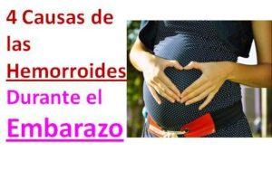 hemorroides embarazo tratamiento