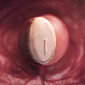 semana 4 embarazo flujo marron