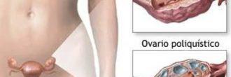 Ovarios poliquísticos y embarazo