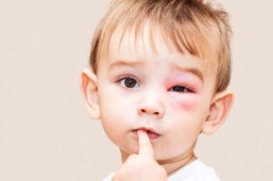 vacuna tosferina embarazo sanitas